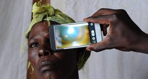 80 بالمئة من حالات العمى بالعالم موجودة في المناطق الفقيرة